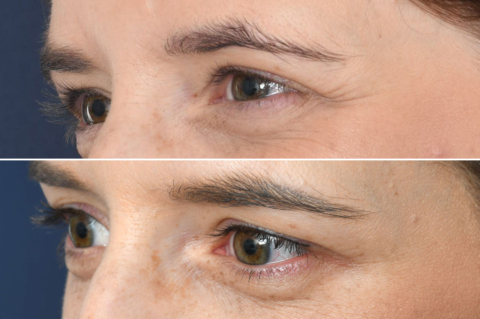 2passclinic before and after transwomen permanent make-up eyeliner