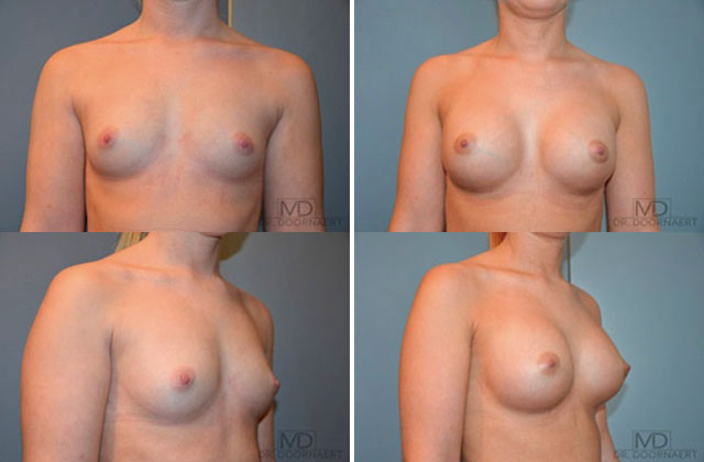 Transsexual breast
