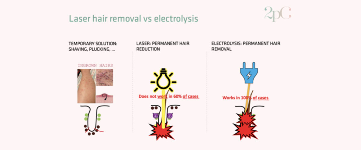 Laser Hair Removal Vs Electrolysis What Is The Difference 2pass Clinic
