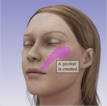 2passclinic before and after transwomen facial feminization FFS mtf cheek augmentation