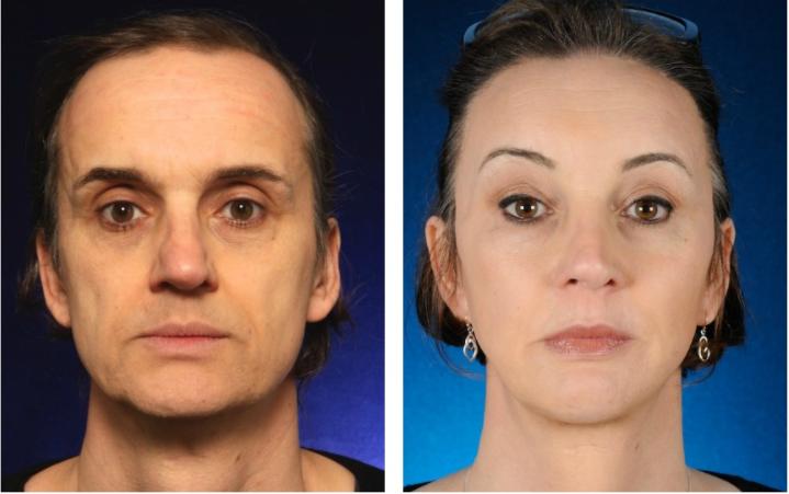Facial Feminization Surgery Cheek Augmentation Creating High And Feminine Cheekbones 2pass Clinic