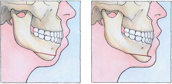 2passclinic before and after transwomen facial feminization FFS mtf antwerp chin surgery