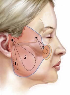 2passclinic before and after transwomen facial feminization FFS mtf antwerp facelift surgery