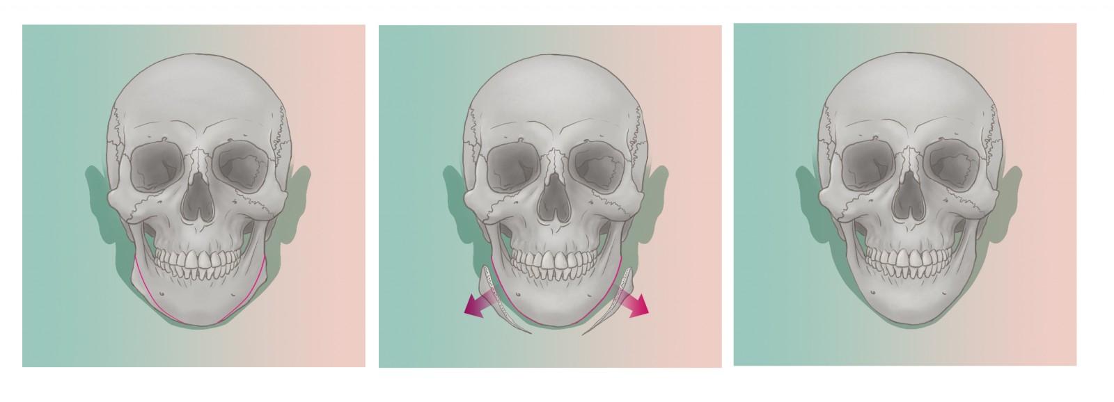 2passclinic before and after transwomen facial feminization FFS mtf antwerp jaw reduction