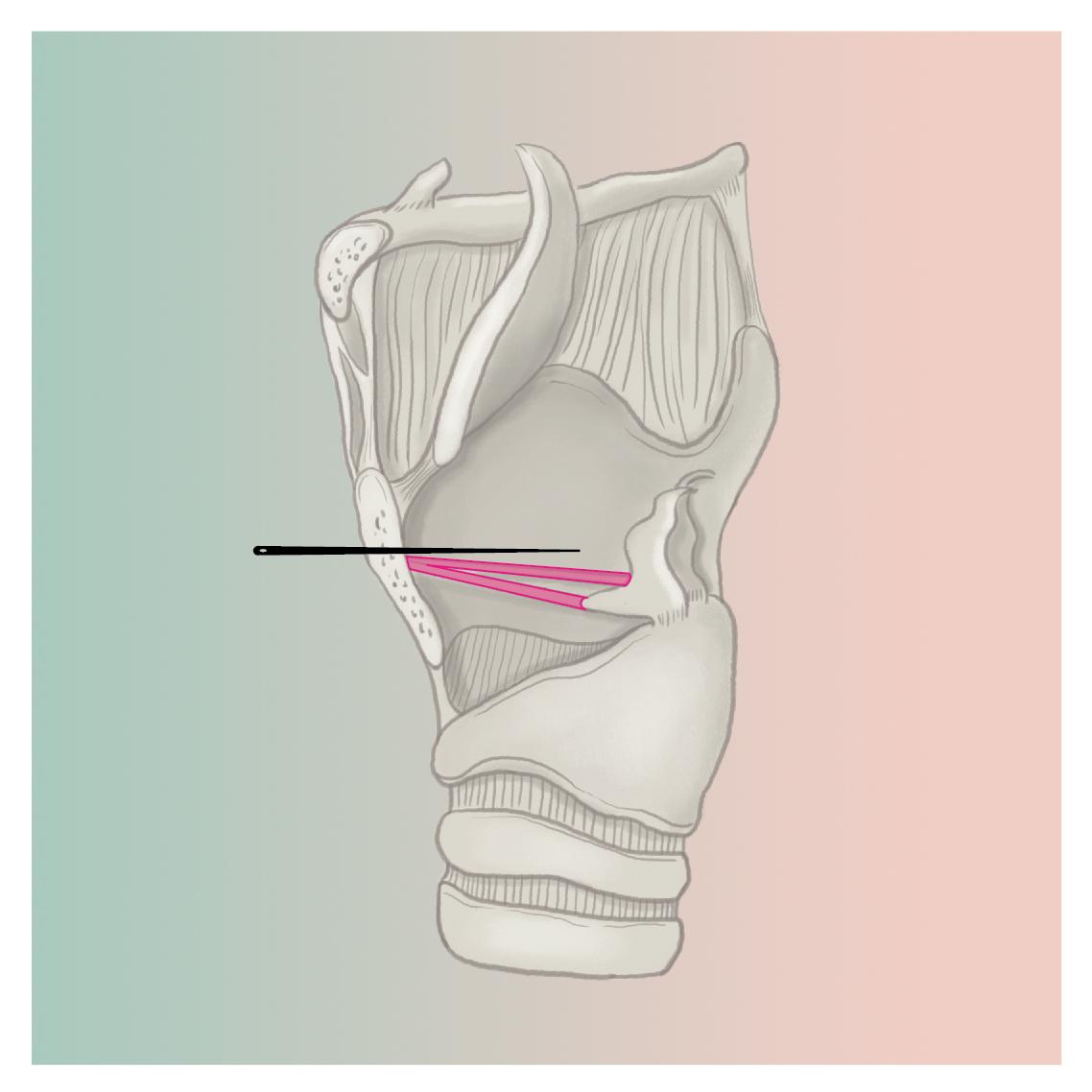 2passclinic before and after transwomen facial feminization FFS mtf antwerp tracheal shave