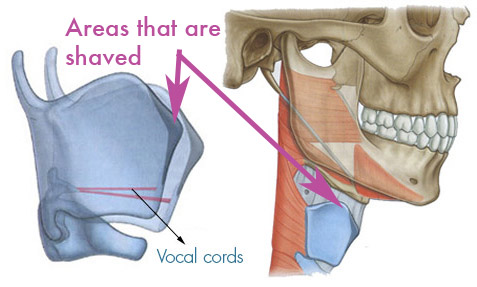 Tracheal shave areas that are shaved
