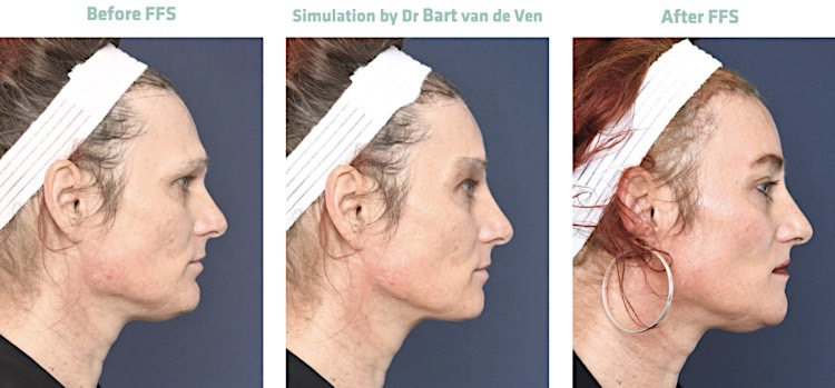 2passclinic before and after transwomen facial feminization FFS mtf antwerp