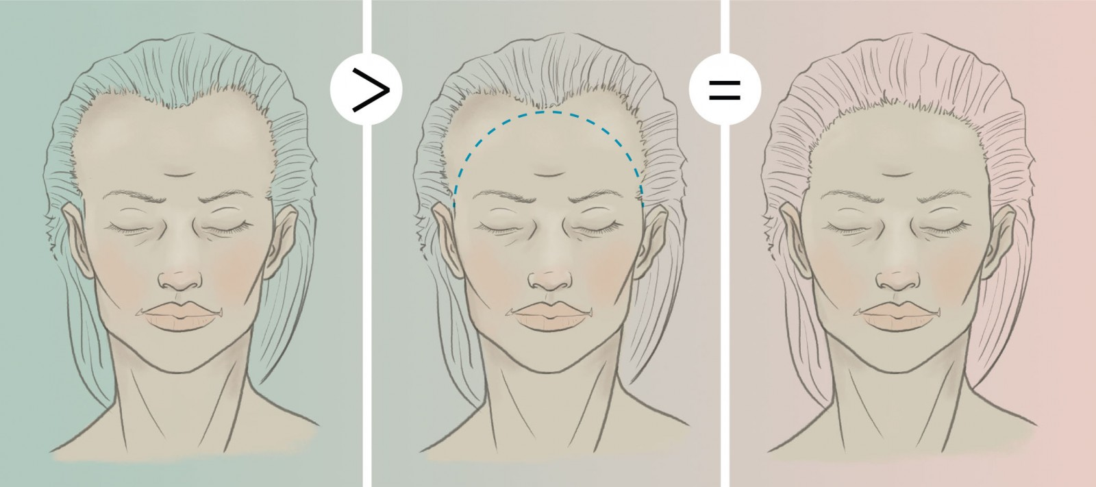 Transgender Hair Transplant