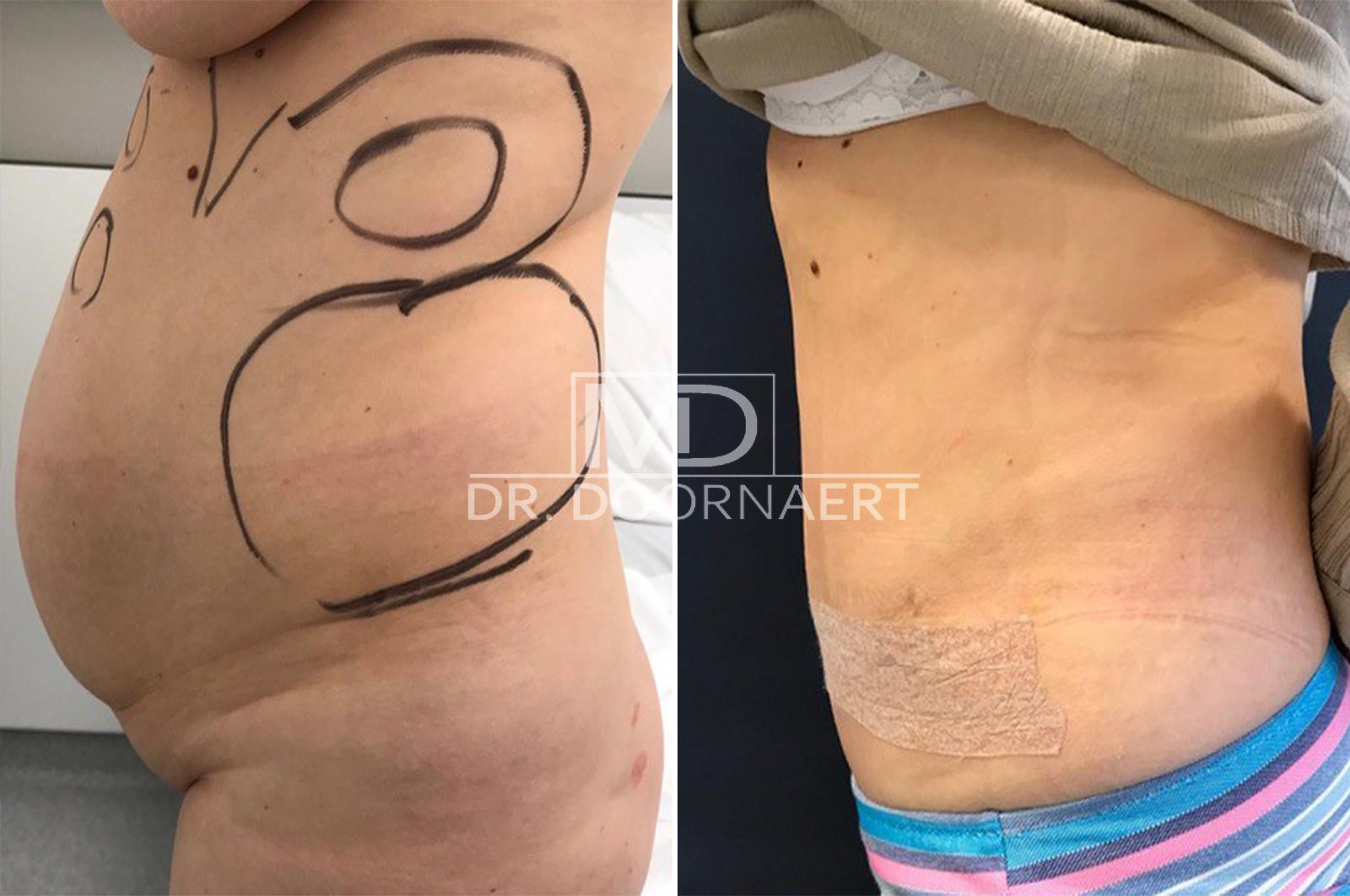 Tummy Tuck Surgery Abdominoplasty before and after BFS   20pass Clinic