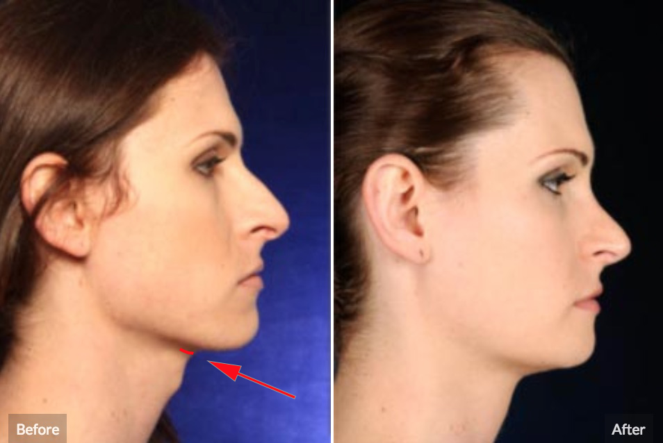 Tracheal shave before and after picture