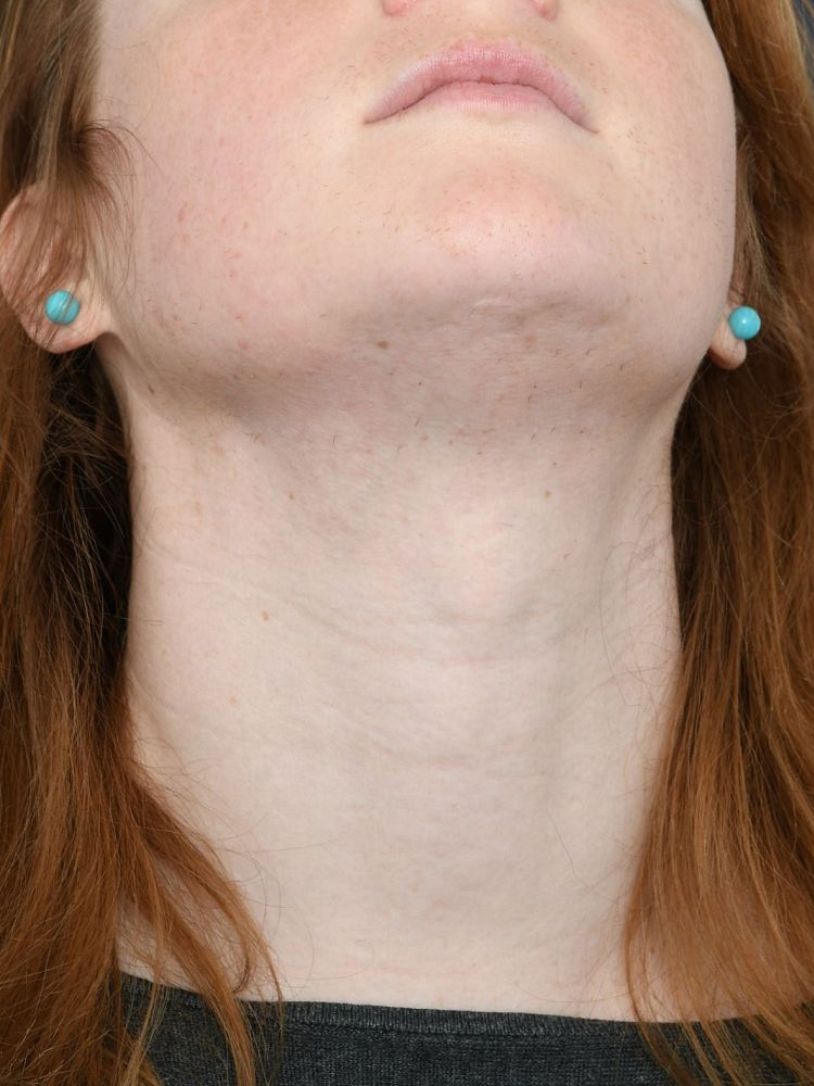Result after 61 hours electrolysis after treatment