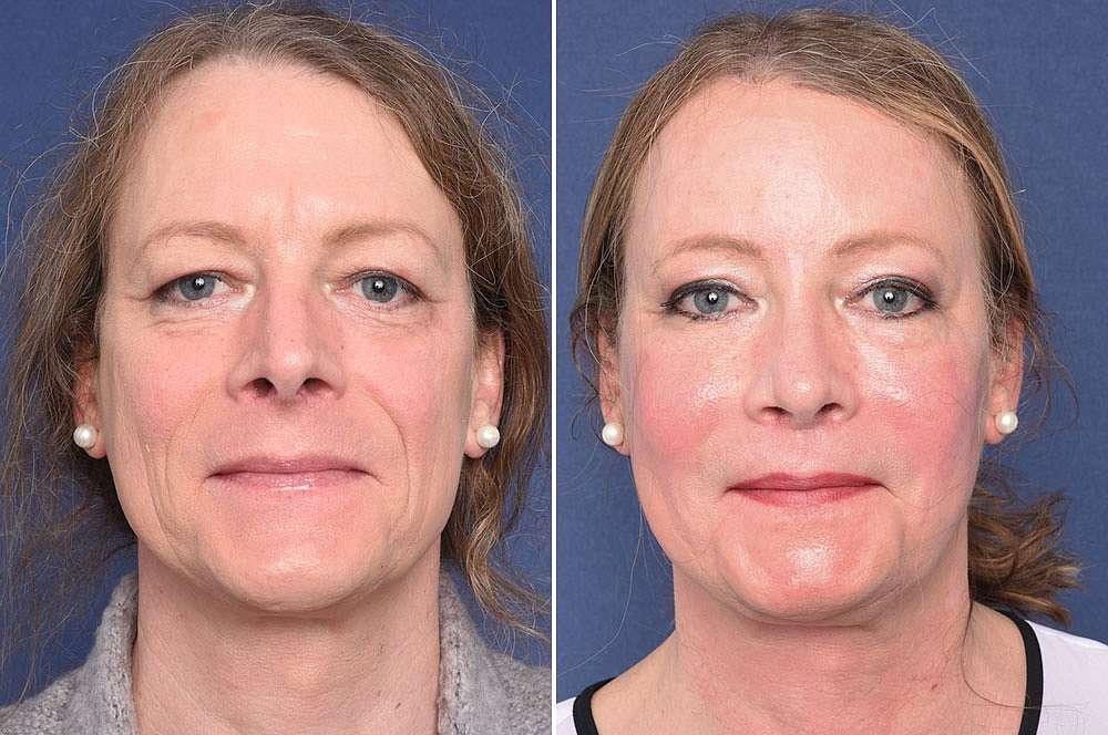 Felicitas voor en na Facial Feminization Surgery