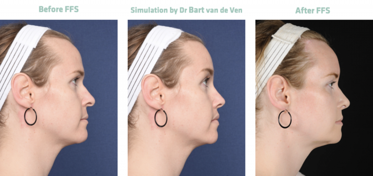 Picture simulation Facial Feminization Surgery Alexandra