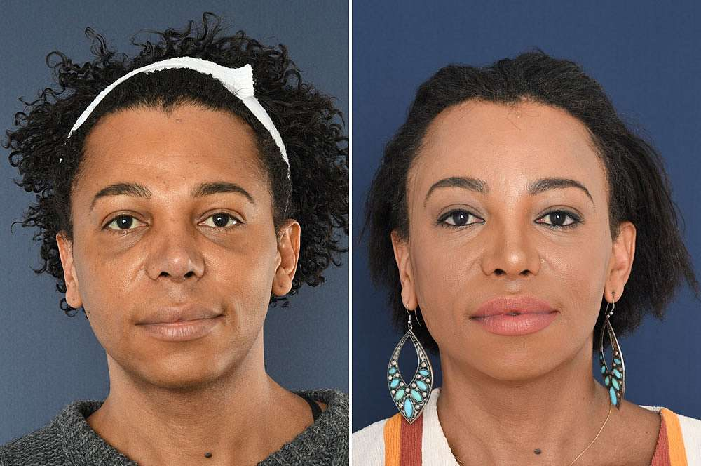 Isis voor en na Facial Feminization Surgery