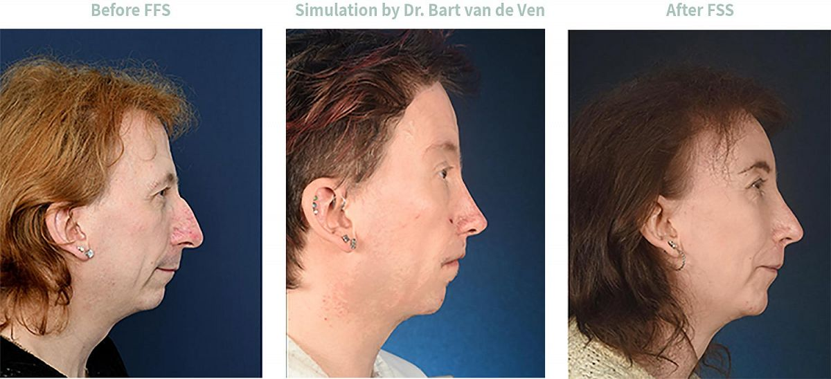 Picture simulation Facial Feminization Surgery Signý