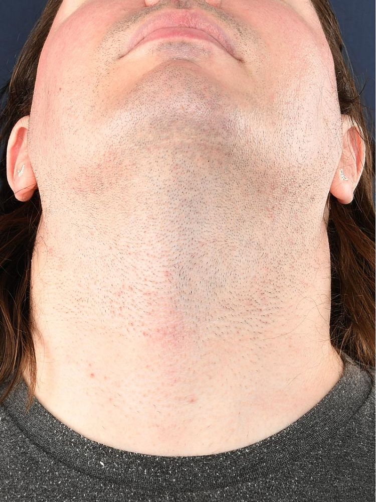 Result after 7 sessions laser treatment and 12 hours electrolysis before treatment