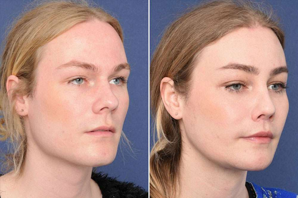 Maggie voor en na Facial Feminization Surgery