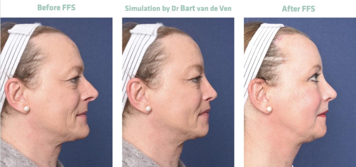 Picture simulation Facial Feminization Surgery Felicitas