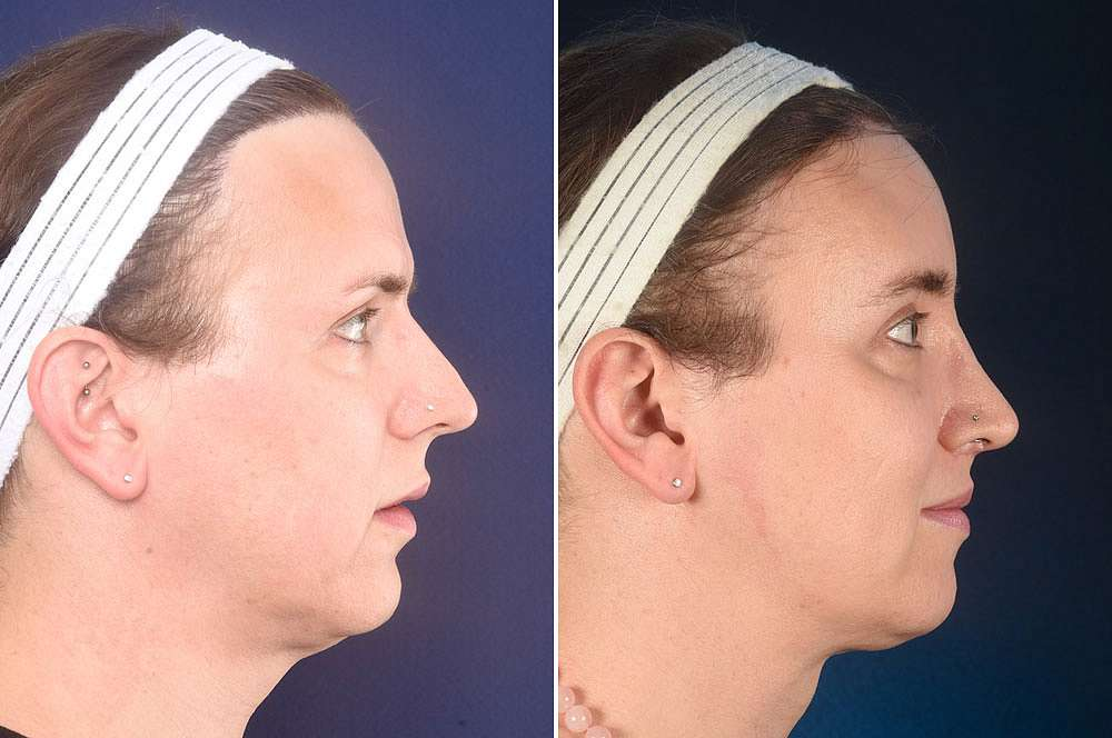 Diana voor en na Facial Feminization Surgery