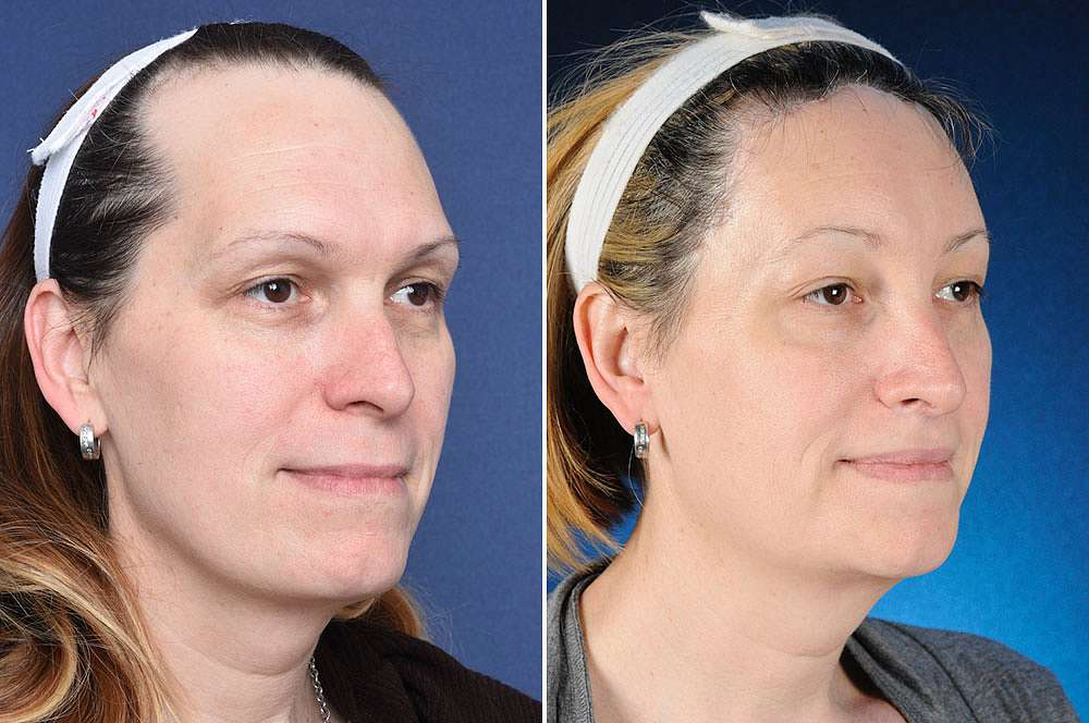 Lena before and after Facial Feminization Surgery