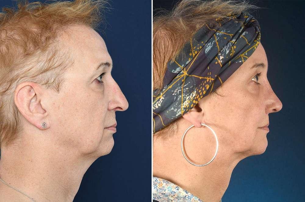 Rebecca voor en na Facial Feminization Surgery
