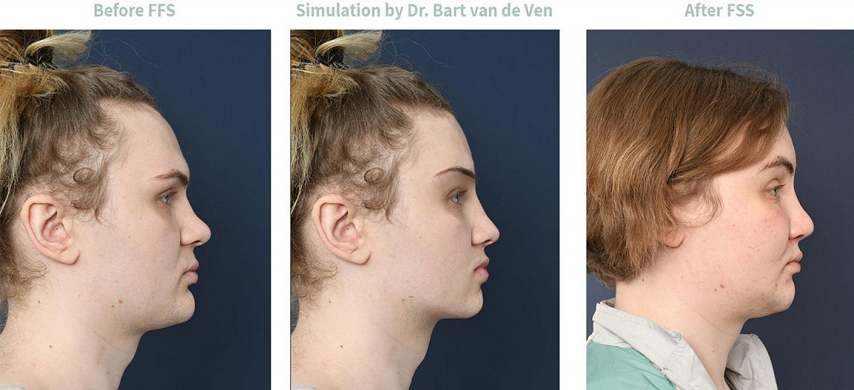 Picture simulation Facial Feminization Surgery Evelyn