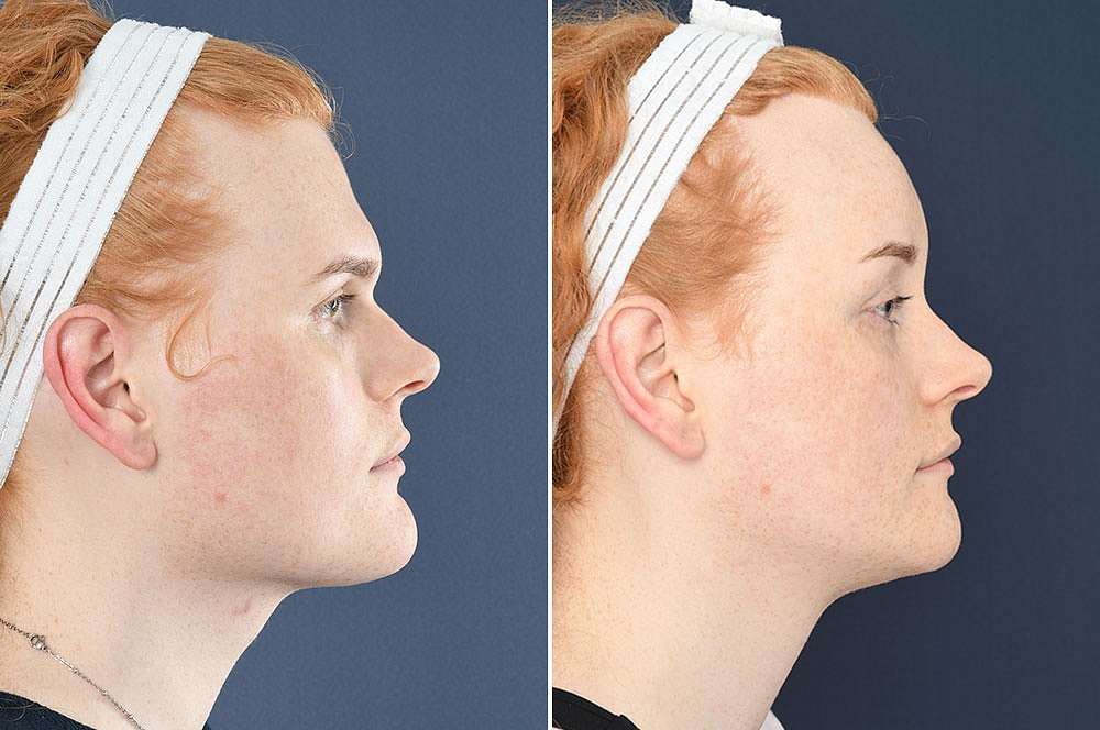 Gwen voor en na Facial Feminization Surgery