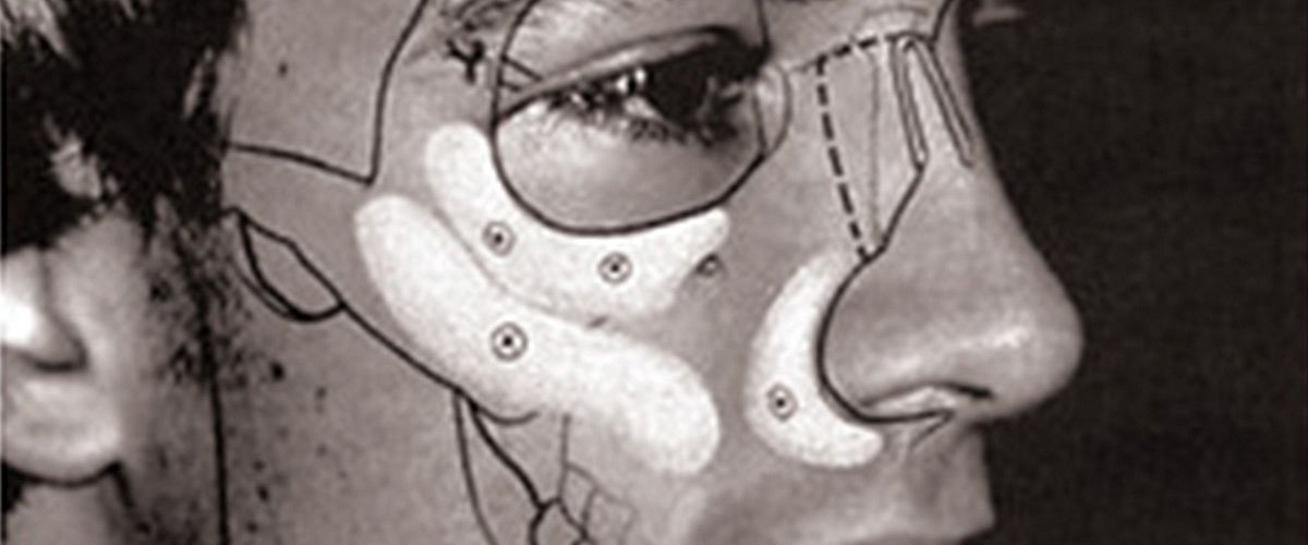 Why there's no place for silicon implants in facial augmentation