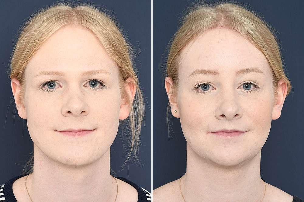 Nikki voor en na Facial Feminization Surgery