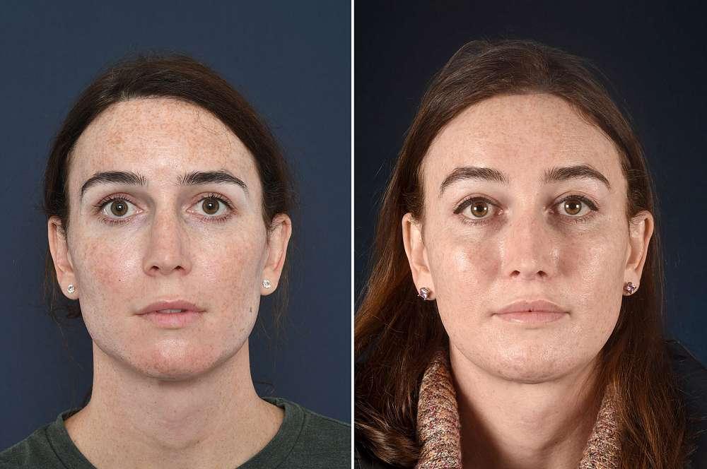 Jamie voor en na Facial Feminization Surgery