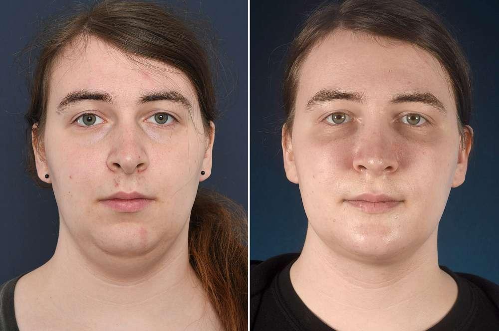 Ronja voor en na Facial Feminization Surgery