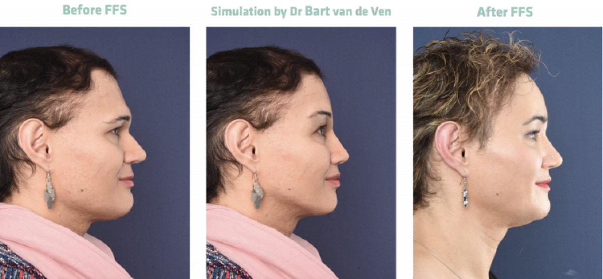 Picture simulation Facial Feminization Surgery Sarah