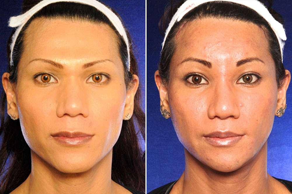 Zanef voor en na Facial Feminization Surgery