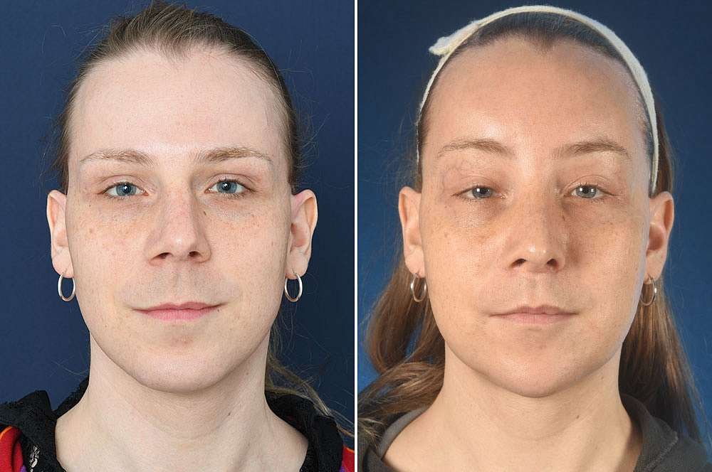 Pina before and after Facial Feminization Surgery