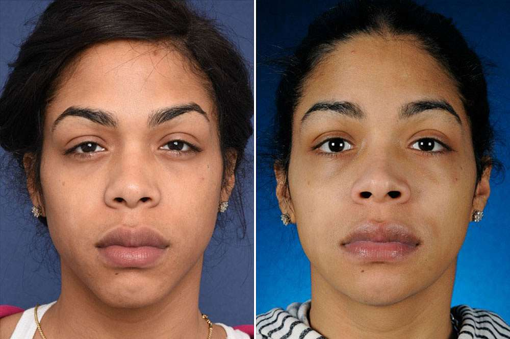 London voor en na Facial Feminization Surgery