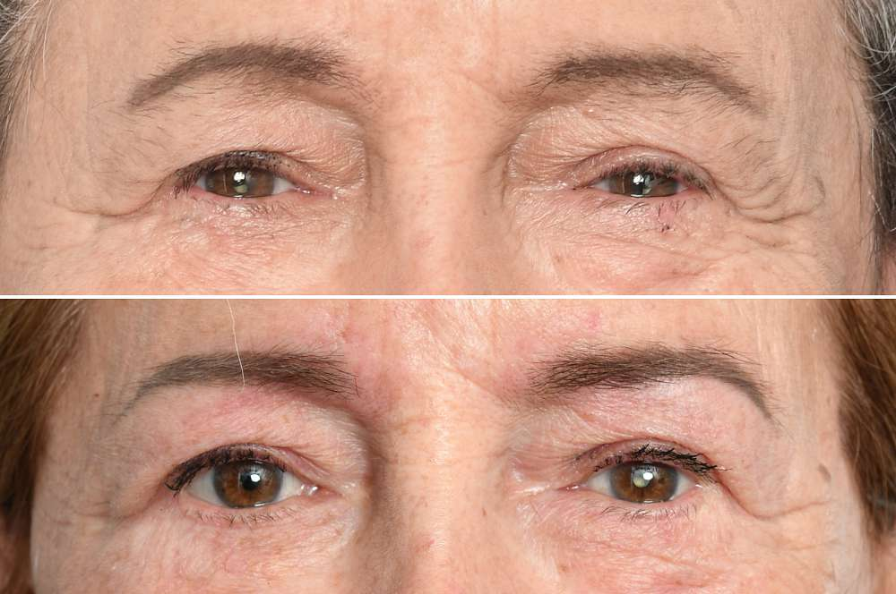Eyebrows / Powderbrows before and after