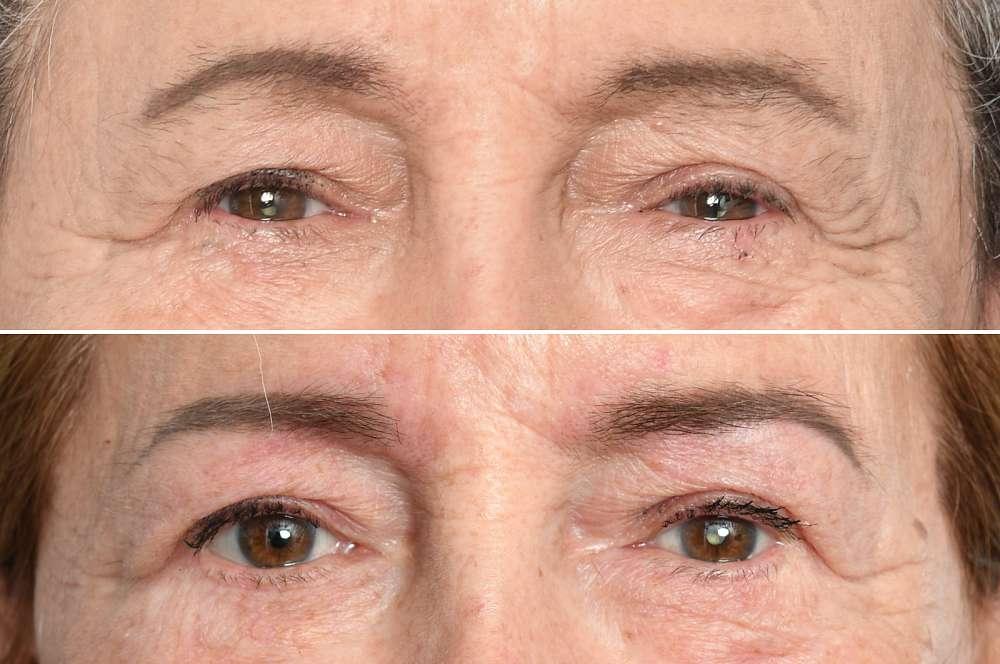 Eyebrows / Powderbrows vorher und nachher