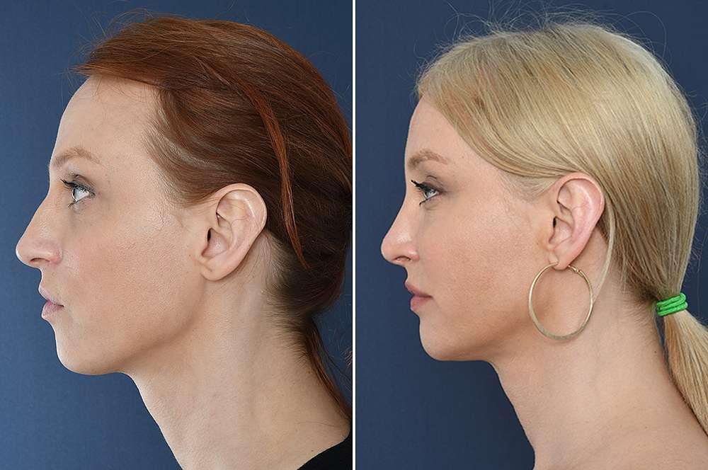 Clarissa vor und nach der Feminisierung des Gesichts