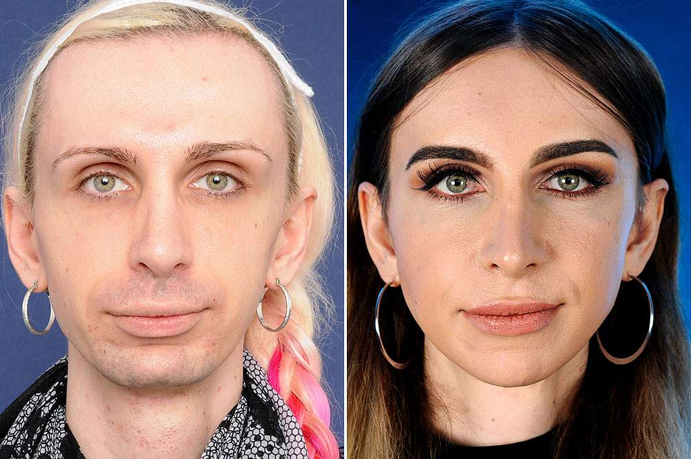 Julia before and after Facial Feminization Surgery