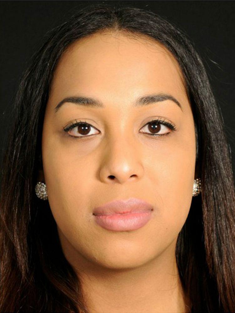 Zahra Before FFS