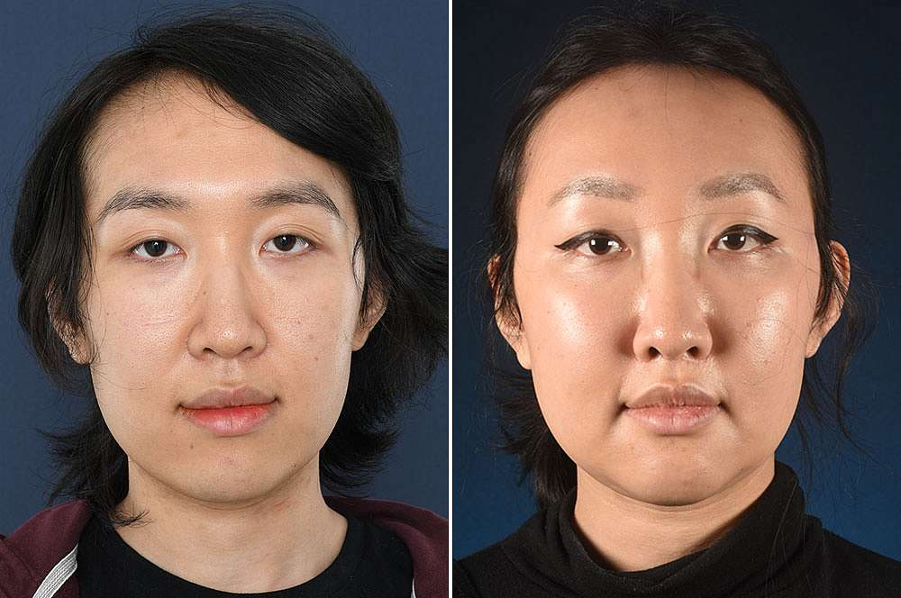 Kai before and after Facial Feminization Surgery