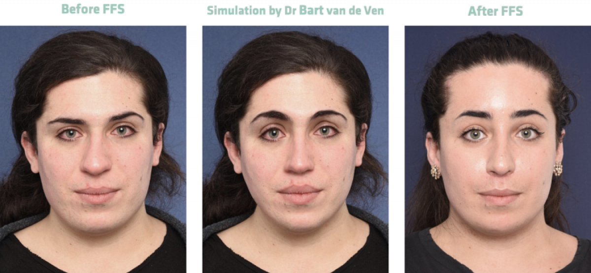 Picture simulation Facial Feminization Surgery Jolina