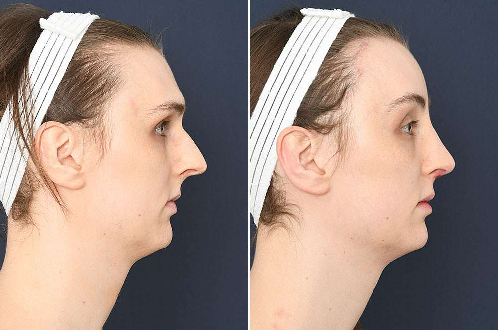 Jolien voor en na Facial Feminization Surgery
