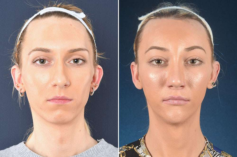 Paris before and after Facial Feminization Surgery