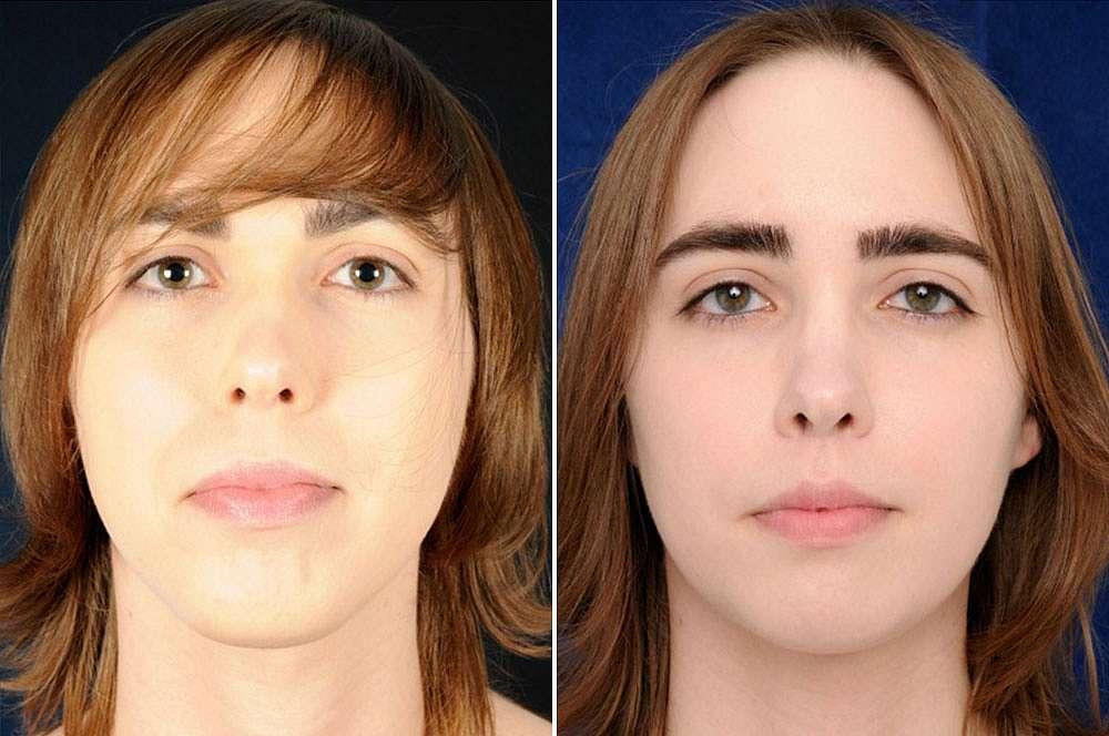 Françoise voor en na Facial Feminization Surgery