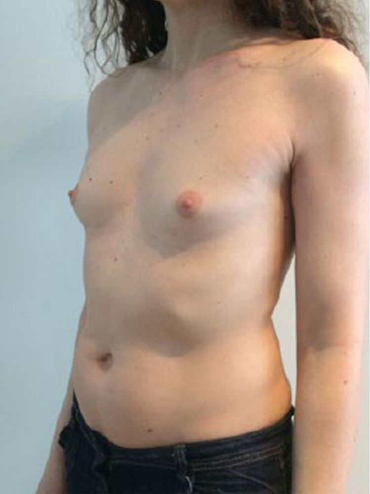 Breast implants - Mtf Before BFS
