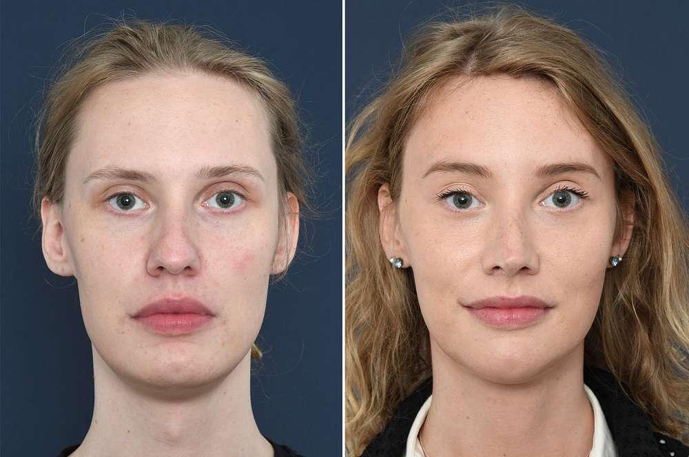 Nicky de Jong before and after Facial Feminization Surgery