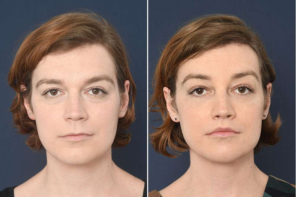 Anya voor en na Facial Feminization Surgery