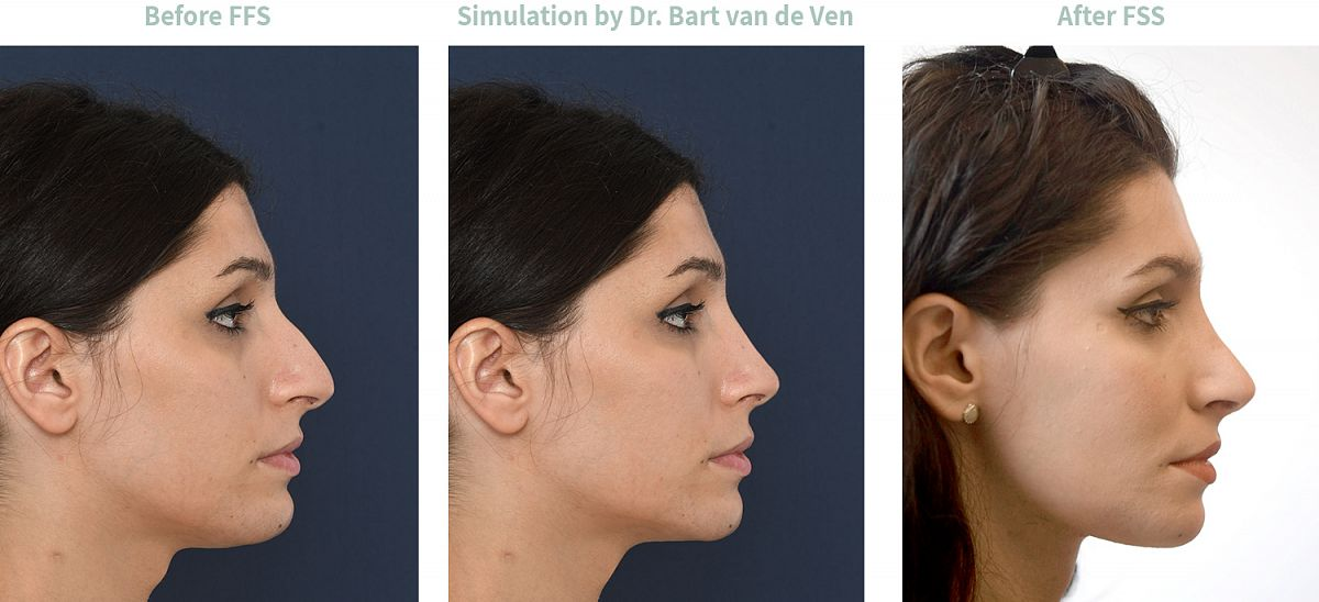 Picture simulation Facial Feminization Surgery Fernanda