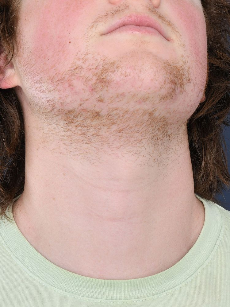 Result after 61 hours electrolysis before treatment